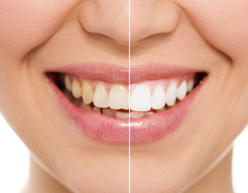cosmetic dentist bonnyrigg