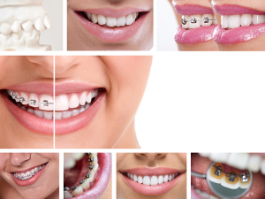 Order Of Dental Treatment