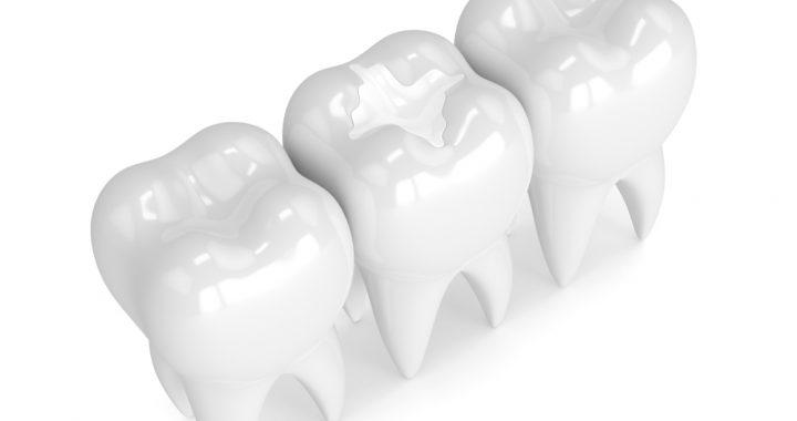 Dental Clinic Bossley Park