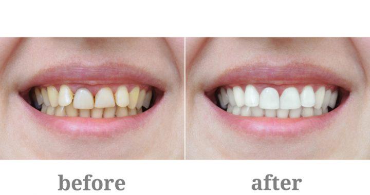 Dentists Bossley Park
